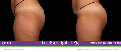 flex-before-and-after-glutes-2