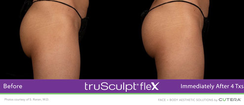 flex-before-and-after-glutes-3