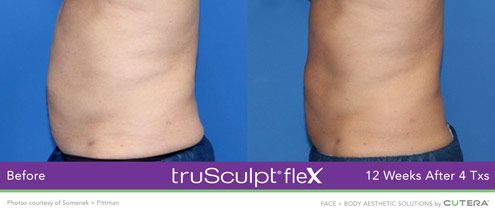 trusculpt-flex-before-and-after-abdominal-2